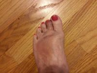 My broken toe!