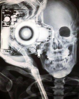 Self Portrait X-Ray