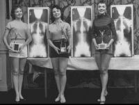Miss Correct Posture contestants with their trophies... and x-rays...