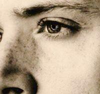 Ackles Freckles