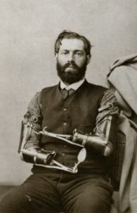 Civil War veteran Samuel Decker poses with the prosthetic arms he made for himself... somehow.